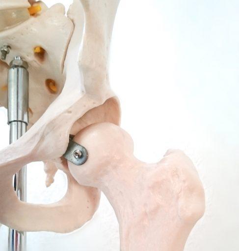 股関節の痛みについての解説になります。女性に多く、先天性股関節症があった方も多くいらっしゃいます。
