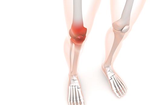 女性に多い変形性膝関節症。ひざ痛は女性に多く、特に60歳を超えると急増していきます。膝の痛みは当院、恵比寿コメディカル整体院へ。